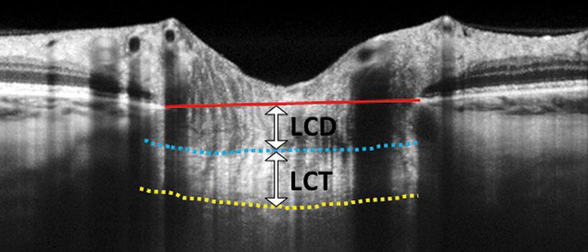 Fig. 2. In this EDI-OCT through the optic nerve, the lamina cribrosa thickness (LCT) is measured from the anterior border (blue dashed line) to the posterior border (yellow dashed line) of the lamina cribrosa. Lamina cribrosa depth (LCD) is measured along a perpendicular line from the anterior border of the lamina to a reference line that connects the edges of Bruch's membrane (red solid line).
