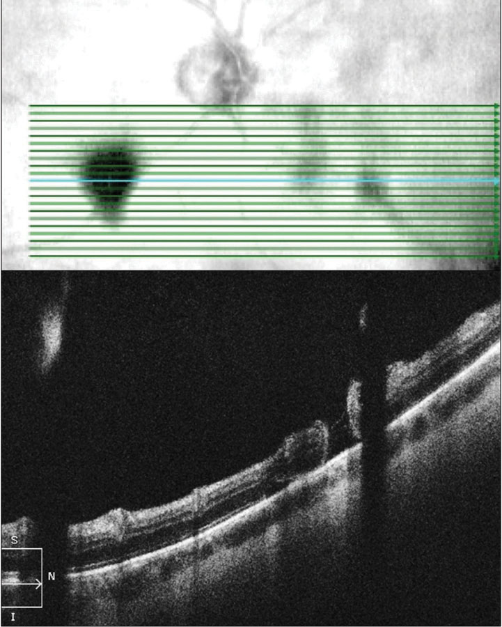 Fig. 4. OCT raster scan reveals a subclinical retinal tear with minimal surrounding subretinal fluid in a patient with acute onset vitreous hemorrhage and proliferative DR.