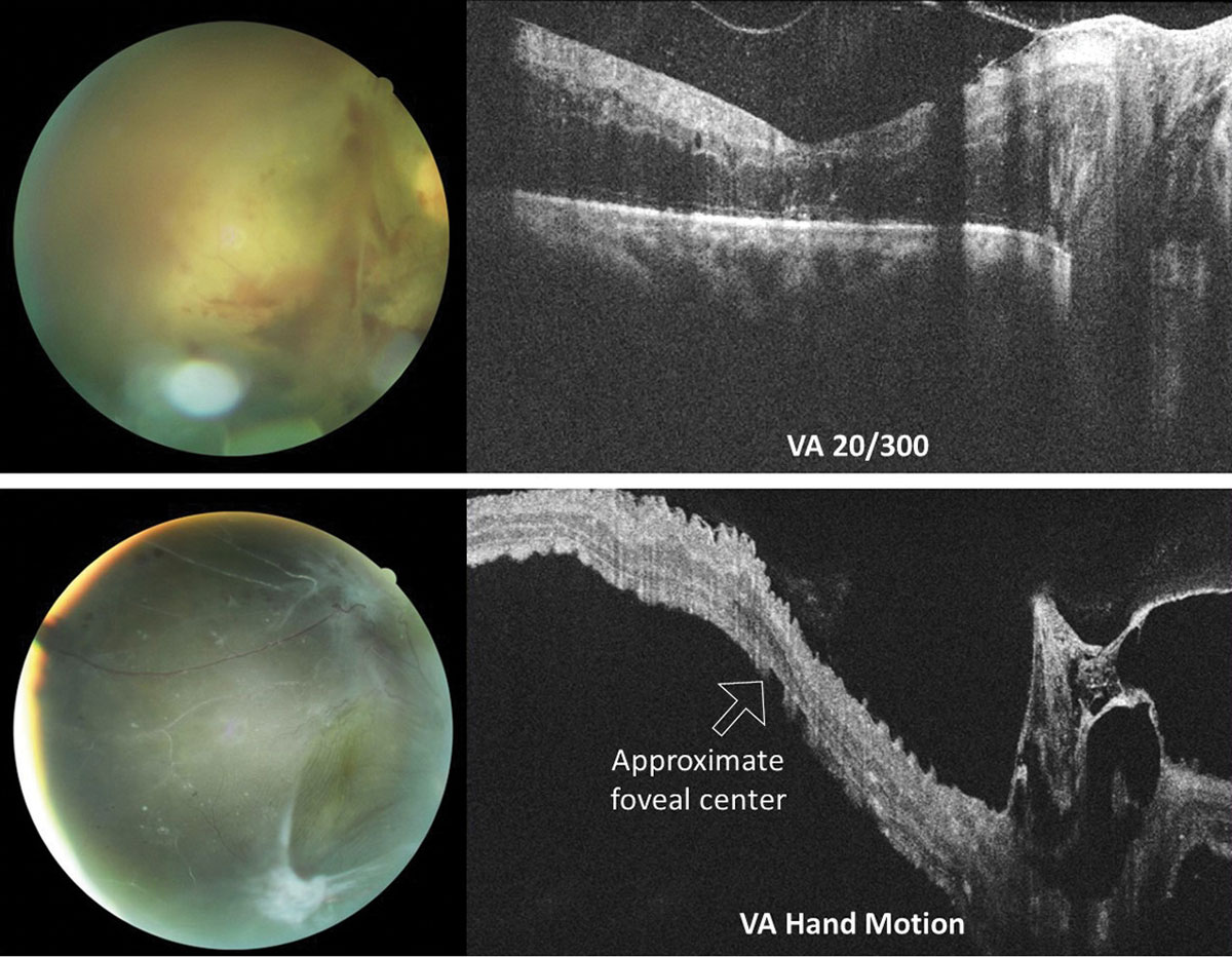 Fig. 7. OCT raster scans through the optic nerve and macula in two different patients with proliferative diabetic retinopathy with vitreoretinal traction of the right eye. In both instances, macular involvement was uncertain based on clinical examination alone. The top eye suffers from severe macular edema of an attached macula. Conversely, the macula of the bottom eye is detached. Acuities were top 20/300 (top) and hand motion (bottom).
