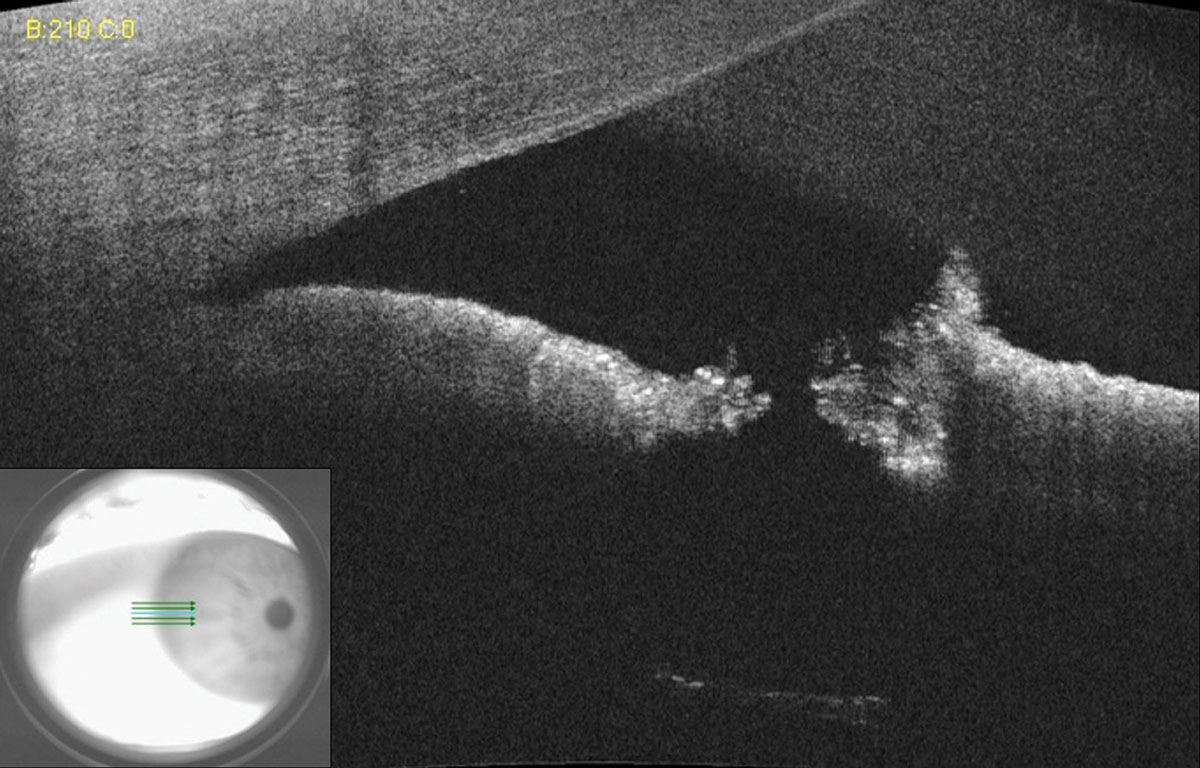 Fig. 10. AS-OCT of a small laser peripheral iridotomy reveals a full thickness hole. Lens zonules can be seen in the bottom scan due to light penetration through the patent iridotomy.