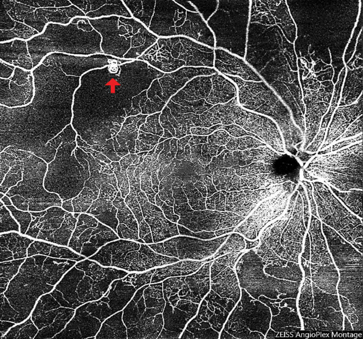 Fig. 9. Widefield OCT-A of an eye with subtle neovascularization (arrow) led to a diagnosis of early proliferative diabetic retinopathy. Also note the significant peripheral retinal nonperfusion.