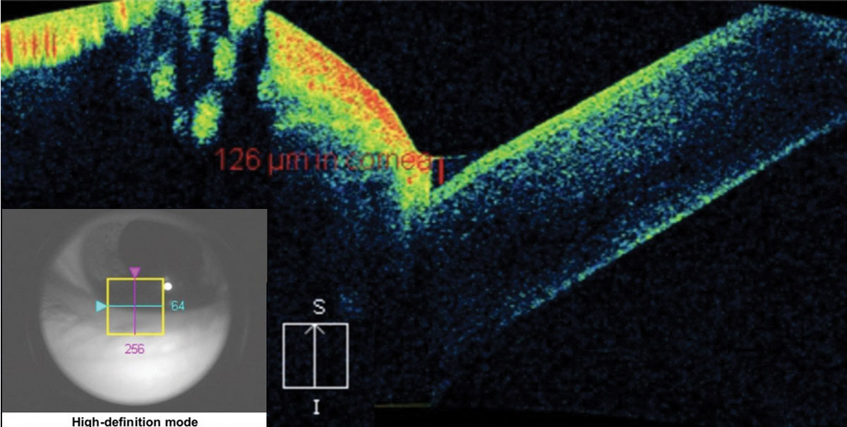 Fig. 12. The crosshair of this anterior segment cube scan taken at the lid margin shows the tear meniscus height at the fornix of the globe and the palpebral conjunctiva. The measurement of 126μm is considered dry eye.