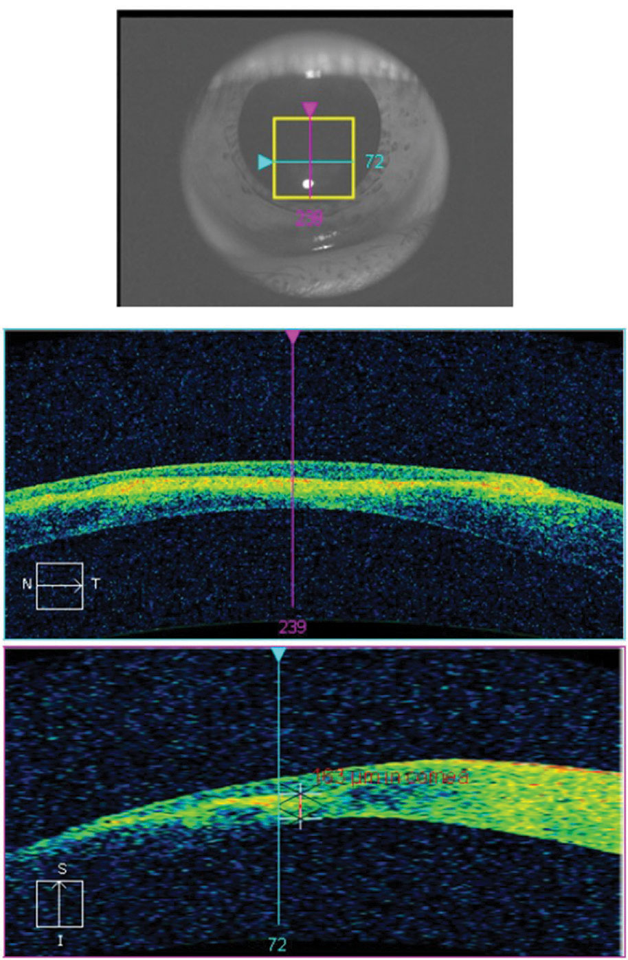 Fig. 11. This AS-OCT scan of a 28-year-old Asian patient with advanced keratoconus and moderate-to-severe pain demonstrates intact endothelial and posterior stromal layers while showing increased reflectivity associated with stromal scarring. In this case, AS-OCT confirmed an intact endothelium and Descemet's membrane. As an added advantage, corneal thickness was measured accurately at the thinnest location using the caliper tool, thereby providing a reliable baseline for follow-up comparison. In light of the anatomical state of the cornea, the patient's symptoms were attributed to epithelial disruption overlying the apex of corneal steepening.