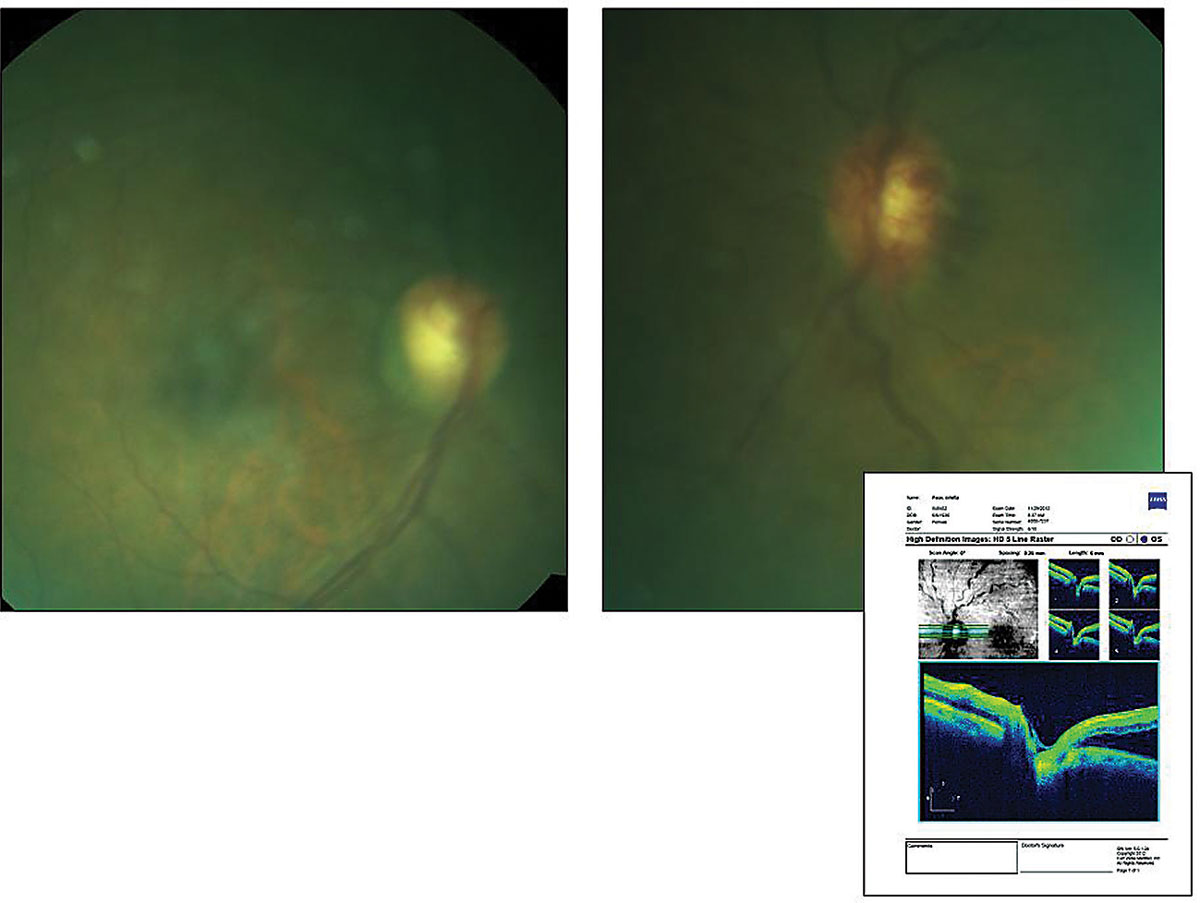 This 67-year-old patient has a history of open-angle glaucoma and an uncomplicated non-ischemic central vein occlusion. She also had hypertension, diabetes and dyslipidemia. Does this presentation plus her history help identify the cause of her reduced visual clarity?