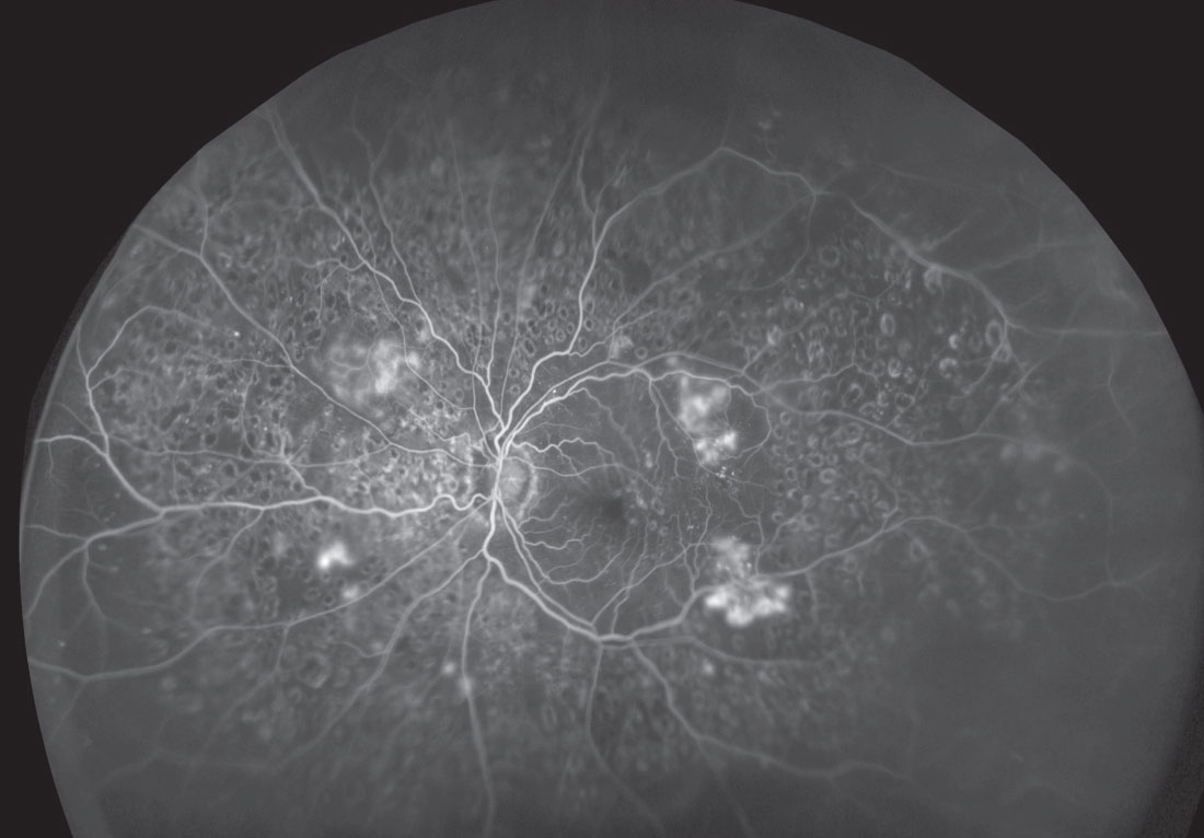 This ultra-widefield image shows an expansive view of a retina with severe diabetic retinopathy.