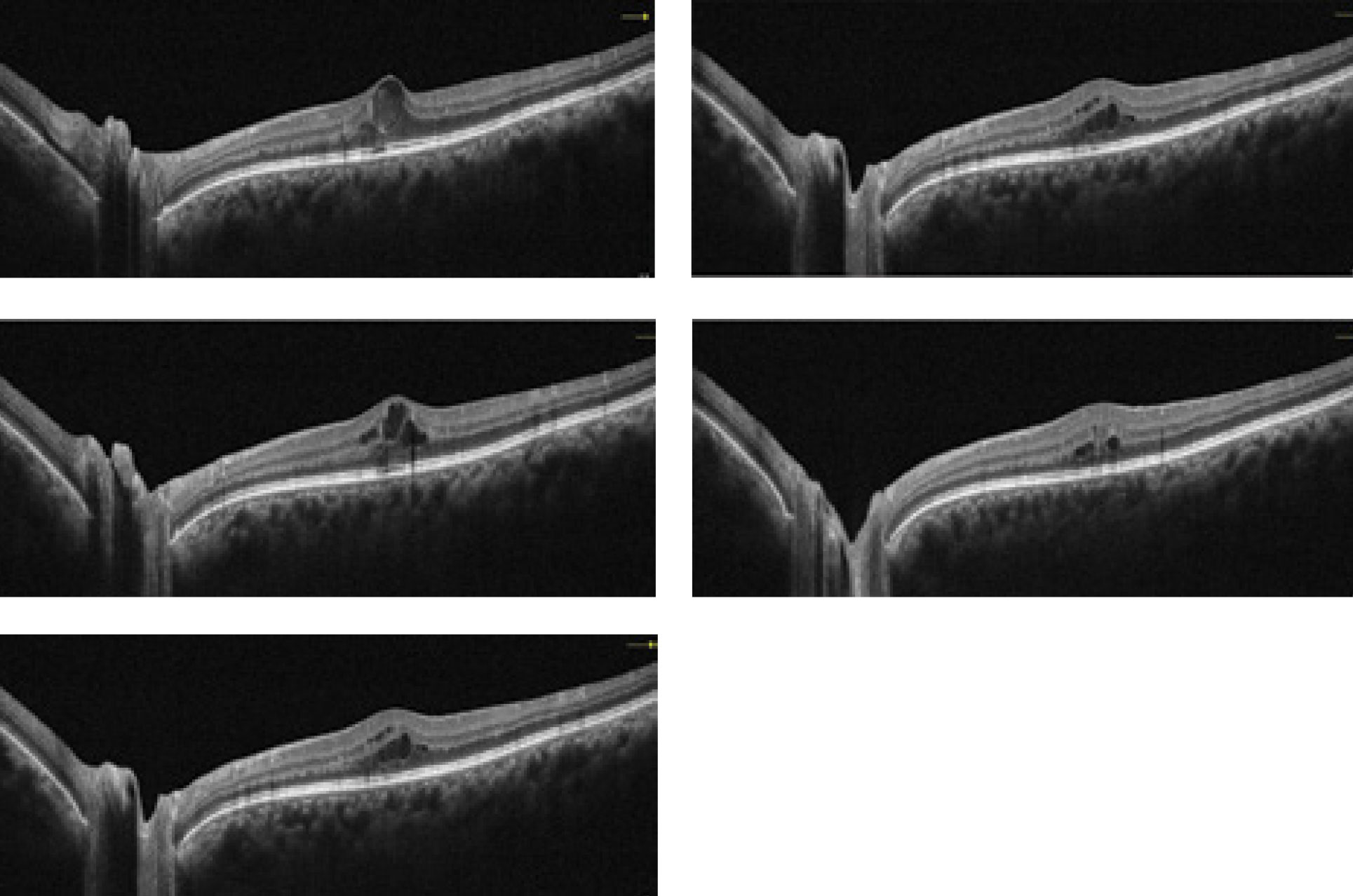 This collection of OCT images exemplify how the technology is able to portray a diabetic retinopathy patient through the course of several visits.