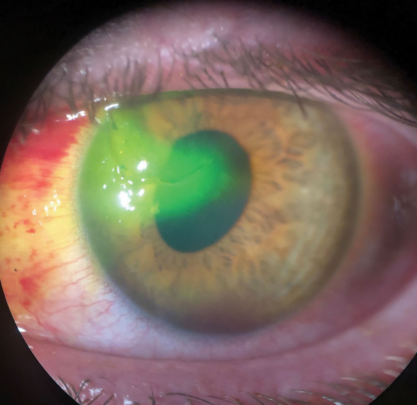 This patient suffered a traumatic corneal laceration after a mishap with a screwdriver. Note the sodium fluorescein being pulled into the stroma and the oblong pupil.