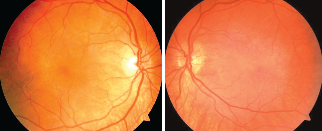 The patient's dilated fundus exam revealed a post-equatorial hypopigmented choroid as well as choroidal folds in the right and left eyes.