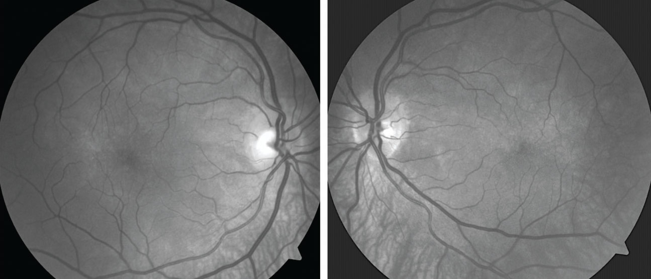 Red-free images show broad areas of choroidal hypopigmentation, most prominent in the area inferior to each optic disc.