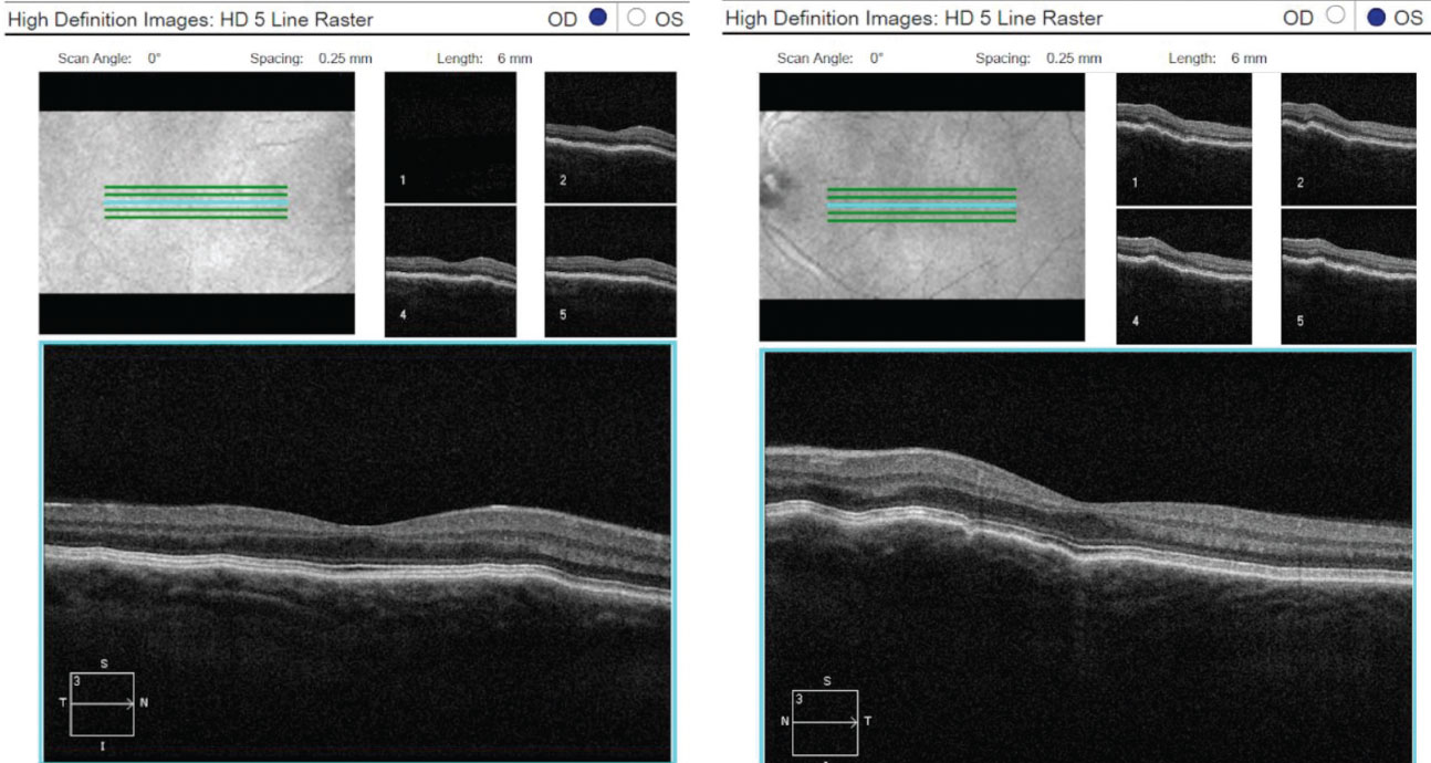 OCT 5-line raster scans of both eyes demonstrated a normal retina, but slight thinning of choroidal tissue and subtle choroidal folds.