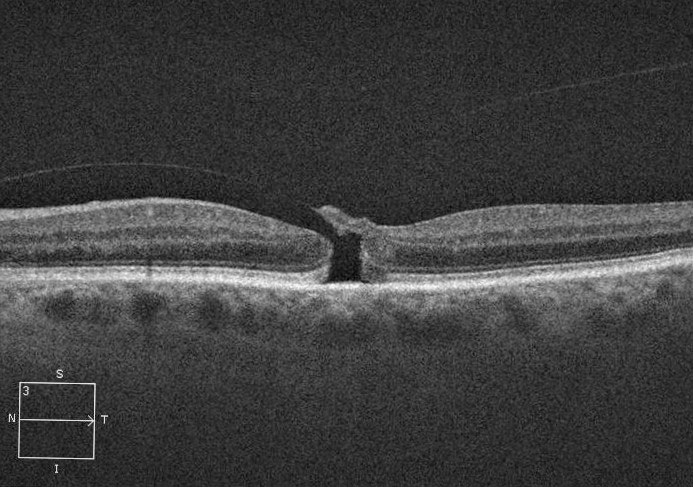 Fig. 2. This stage 2 macular hole has an attached posterior hyaloid.