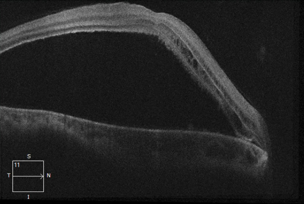 This 21-line macular OCT shows, in our patient's right eye, a non-rhegmatogenous serous retinal detachment.