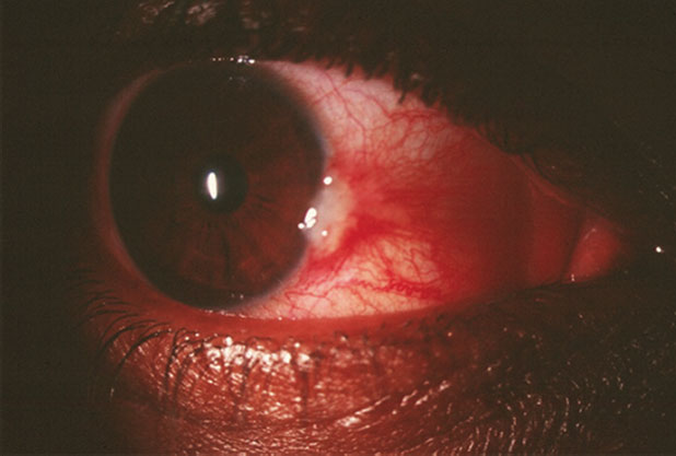 This patient's red eye has been getting progressively worse. Can anything about this image and the diagnostic data help explain why?