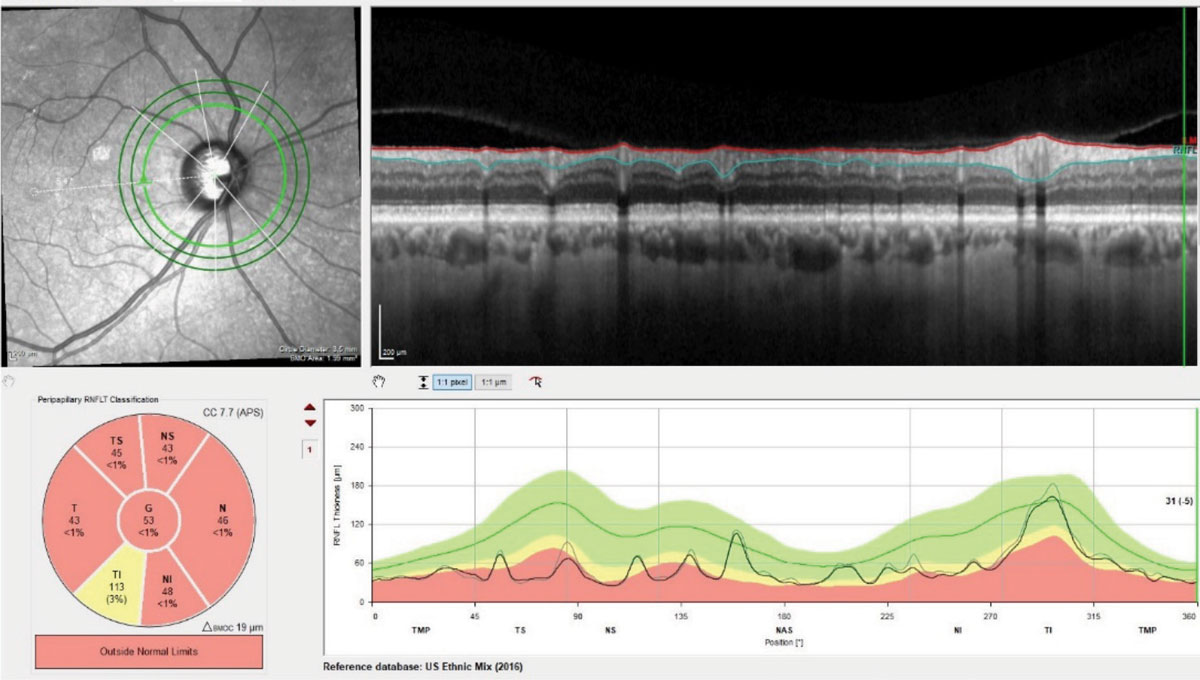 Three RNFL diameter circle scans of the patient's right eye. Note the stability of the innermost RNFL circle scan of the most recent visit compared with the baseline visit obtained 18 months earlier. Where there is a difference between the scans, the thickness differences overlay major perioptic retinal blood vessels.