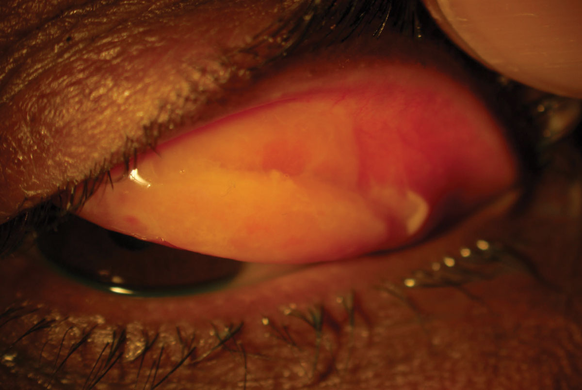 This 27-year-old patient's persistent reddening and discharge was coupled with this finding, seen upon everting the eyelid.
