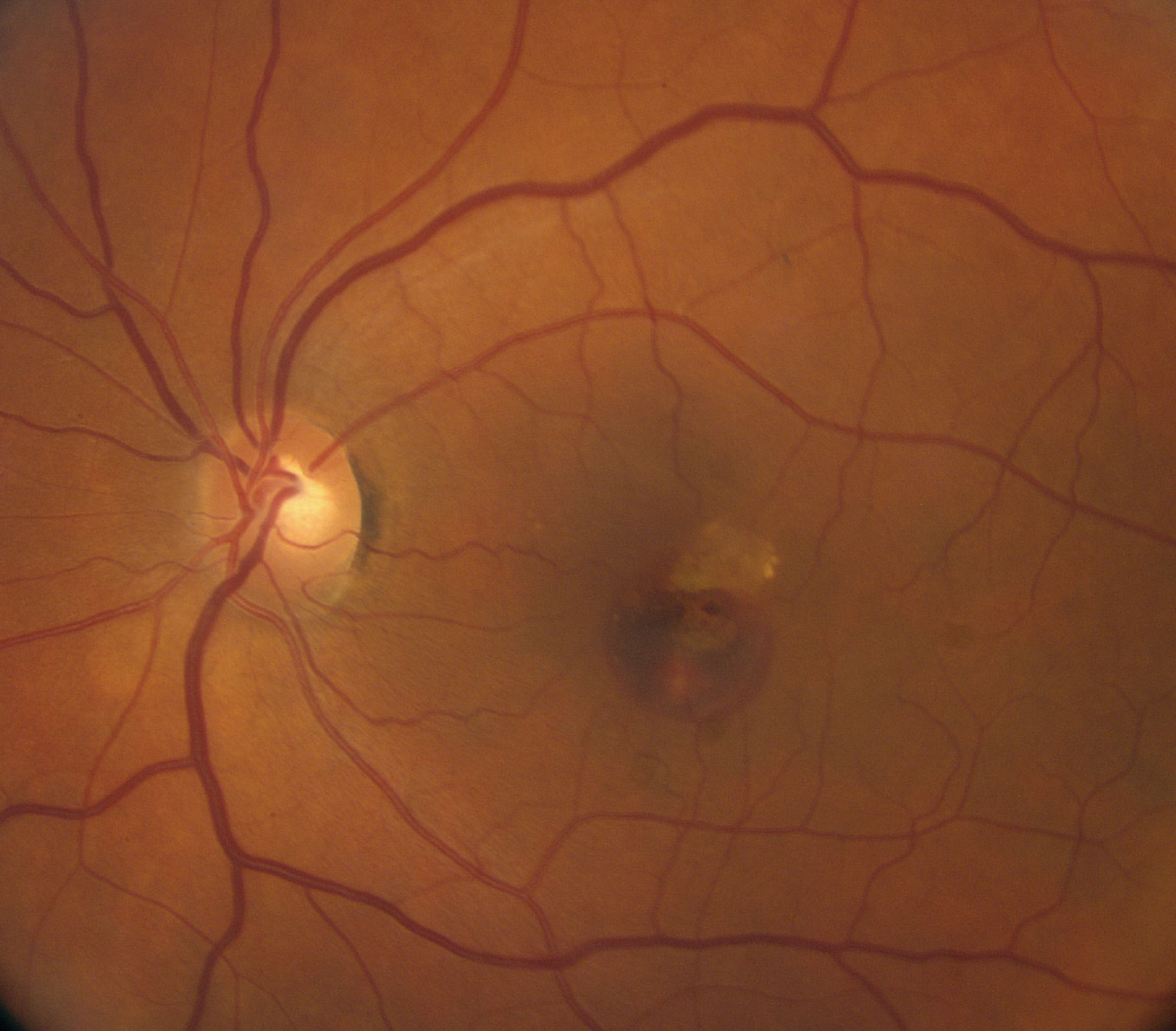 This fundus photo shows our patient's left eye. How do you account for the hemorrhage?