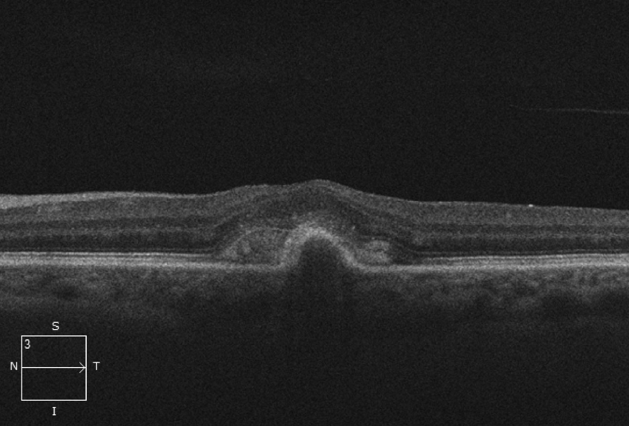 This OCT scan shows us what's beneath the patient's macula.