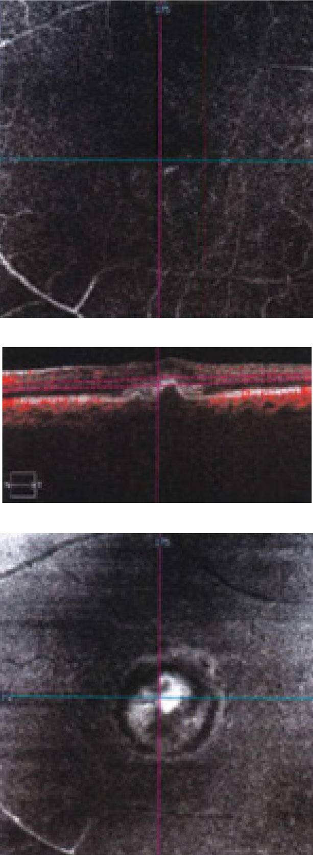 "This ""deep slice"" OCT-A shows an en face view of through the patient's macula."