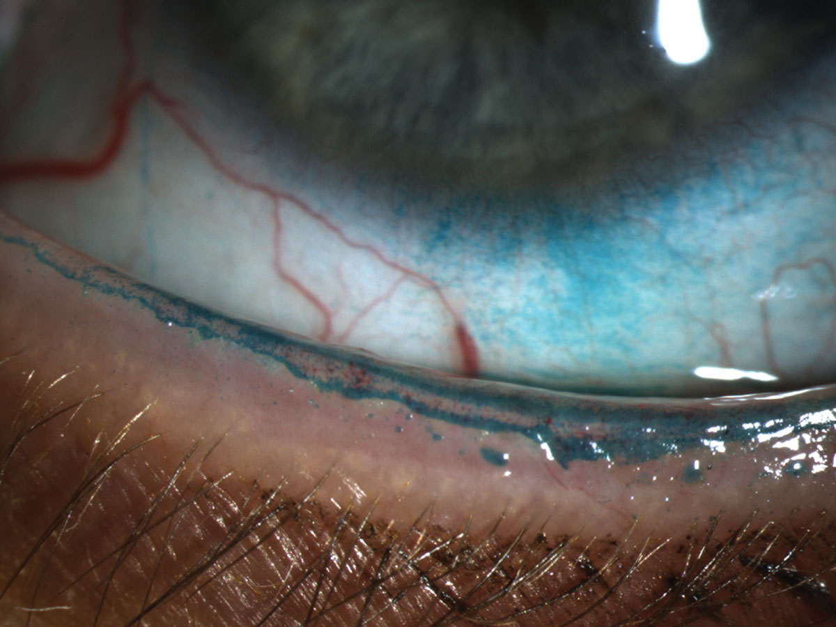 Lissamine green instilled in the eye reveals a line of Marx that transects the meibomian gland orifice.