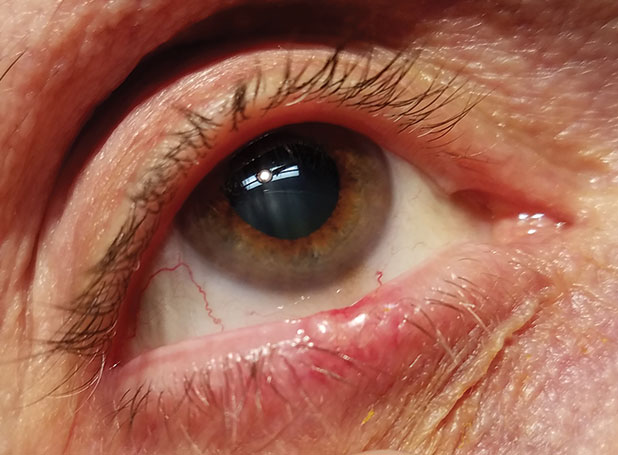 Basal cell carcinoma of the lower eyelid margin. Note the ulceration of the superior aspect, the lesion's pearly elevated margins and madarosis.