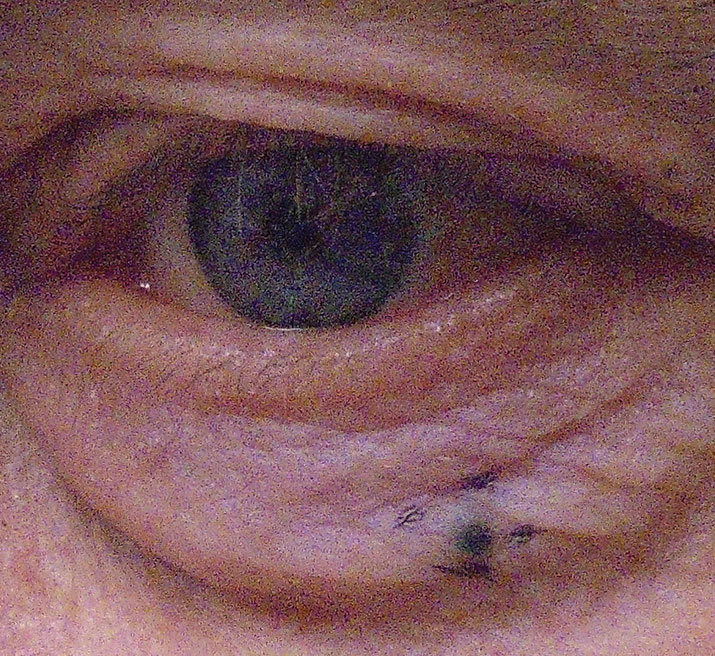 Nodular melanoma of the lower eyelid.