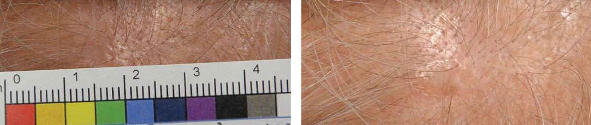 This patient with actinic keratosis of the scalp has a subtle lesion that is pinkish-tan and slightly elevated.