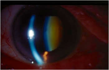 When a patient has an advanced cataract ready for surgery, you need to have a surgeon ready for your referral.