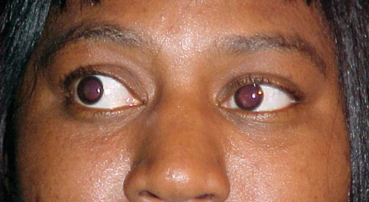 What can this patient's anterior segment presentation tell you about the likely cause of her dry and scratchy eyes?