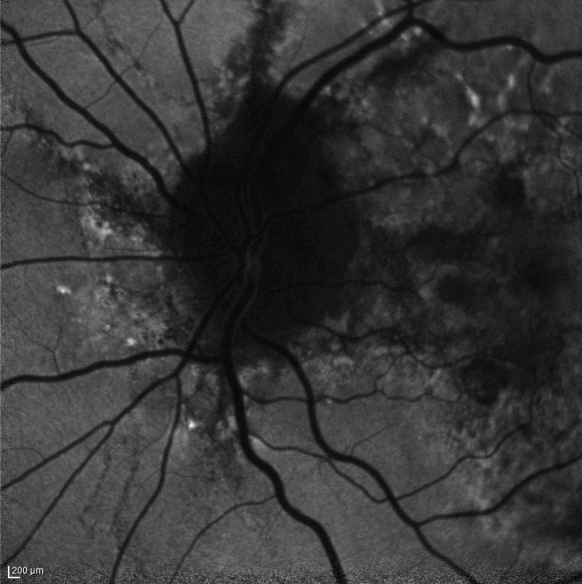 Fig. 1. The patient's fundus autofluorescence demonstrates hyperfluorescent streaks radiating from the optic nerve that correspond clinically with angioid streaks.