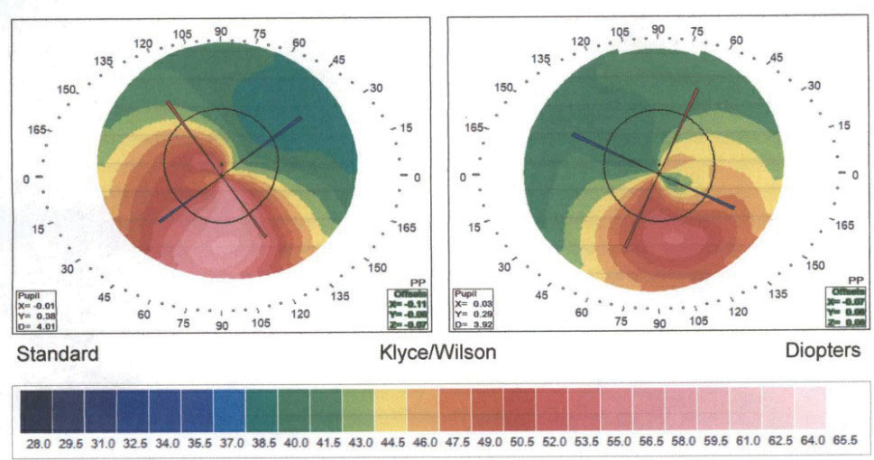 The corneal topography of a 20-year-old who has undergone CXL shows irregular inferior steepening consistent with keratoconus in the right eye more so than the left. Data collected annually will continue to assess for corneal stability vs. progression.