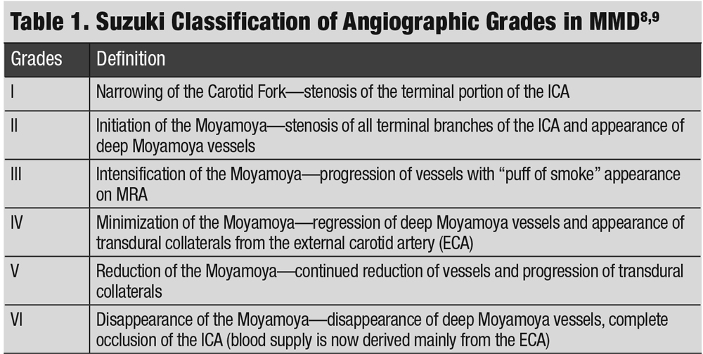 Table 1. Suzuki Classification of Angiographic Grades in MMD