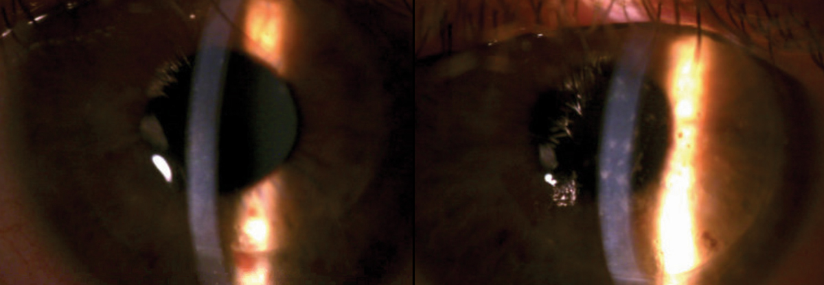 Fig. 1. Upon presentation, scattered SEIs were noted throughout the right corneal graft along with temporal graft edema (left). The left corneal graft was remarkable for scattered SPK; no SEIs or graft edema were noted (right).