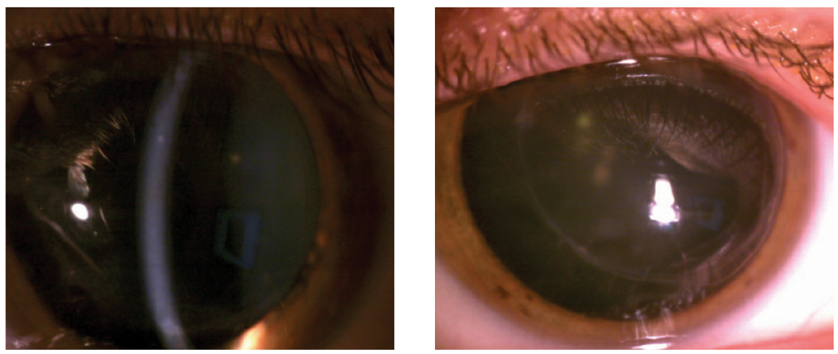 Fig. 2. At left, after aggressive steroid use and several visits with ophthalmology, this right corneal graft was finally clear. Though the left graft did not undergo rejection throughout this case, a photo of the left eye was provided for contrast.