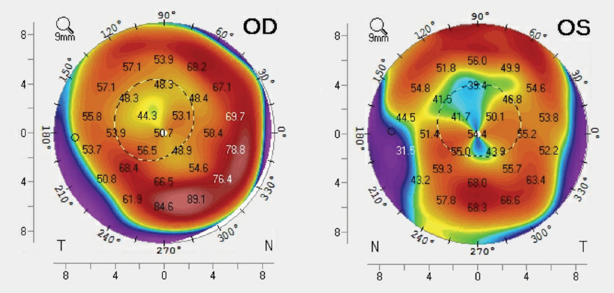 Fig. 3. These tangential curvature maps show our patient's corneal topography.
