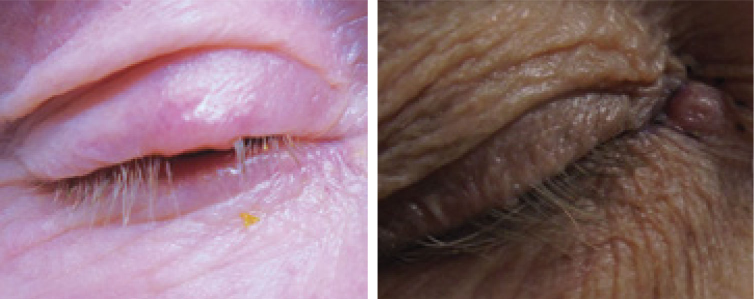 BCC of the upper eyelid, at left and the medial chanthus/nasal root, at right. Note the lesions' pearly elevated margins.