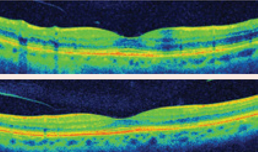High-resolution OCT demonstrating localized parafoveal thinning in a patient with early Plaquenil toxicity.