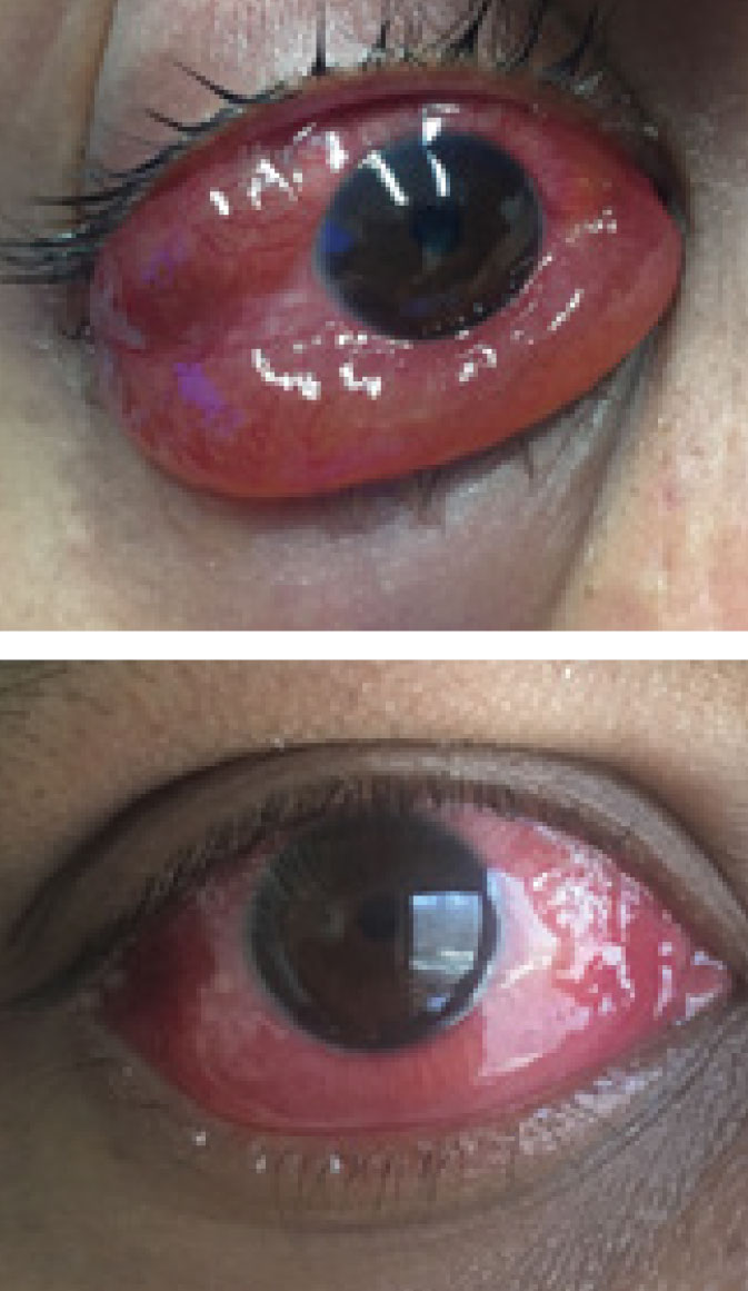 One dose of prednisone led to significant improvement of the patient's injection and severe chemosis of the right eye.