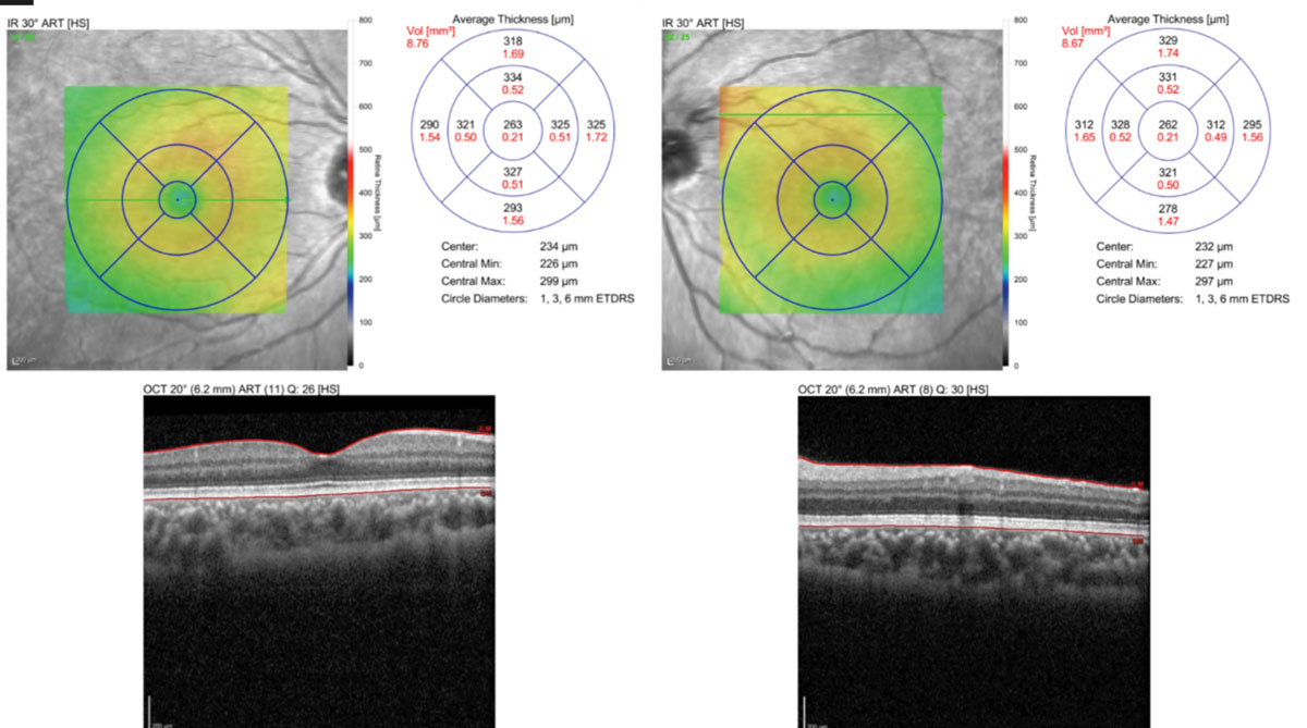 Fig. 5. OCT macular scan shows no structural abnormalities.