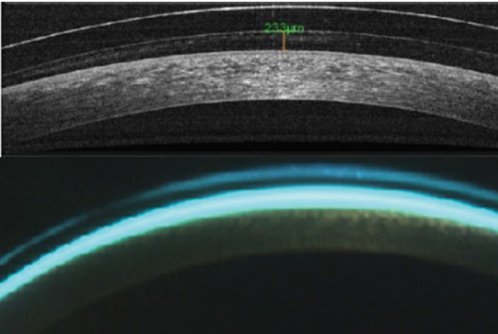 Fig. 2. AS-OCT (top) and biomicroscopy of central scleral lens clearance.