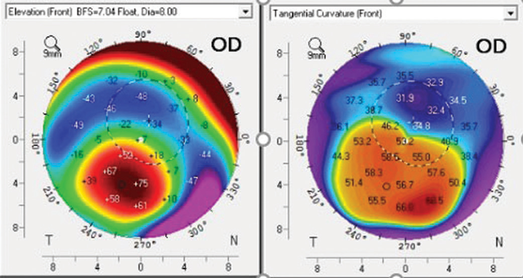 Fig. 5. Corneal topography of a post-PK patient shows the corneal apex is outside the center of the cornea.