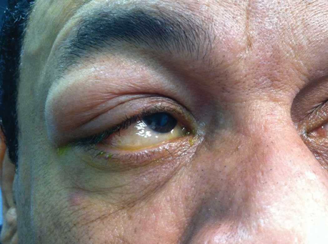 Fig. 1. This patient went to sleep feeling fine, but something went bump in the night—his eyelid. Can you identify what caused this and how he should be treated?