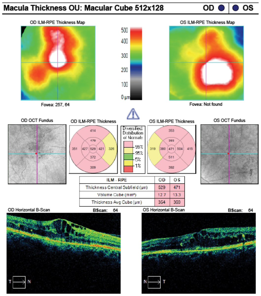 These macular cube analysis images of the same patient from the previous page shows clinically significant macular edema in both eyes.