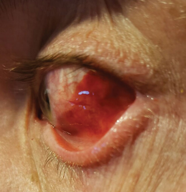 When assessing conjunctival laceration, subconjunctival hemorrhage may limit view of the sclera.