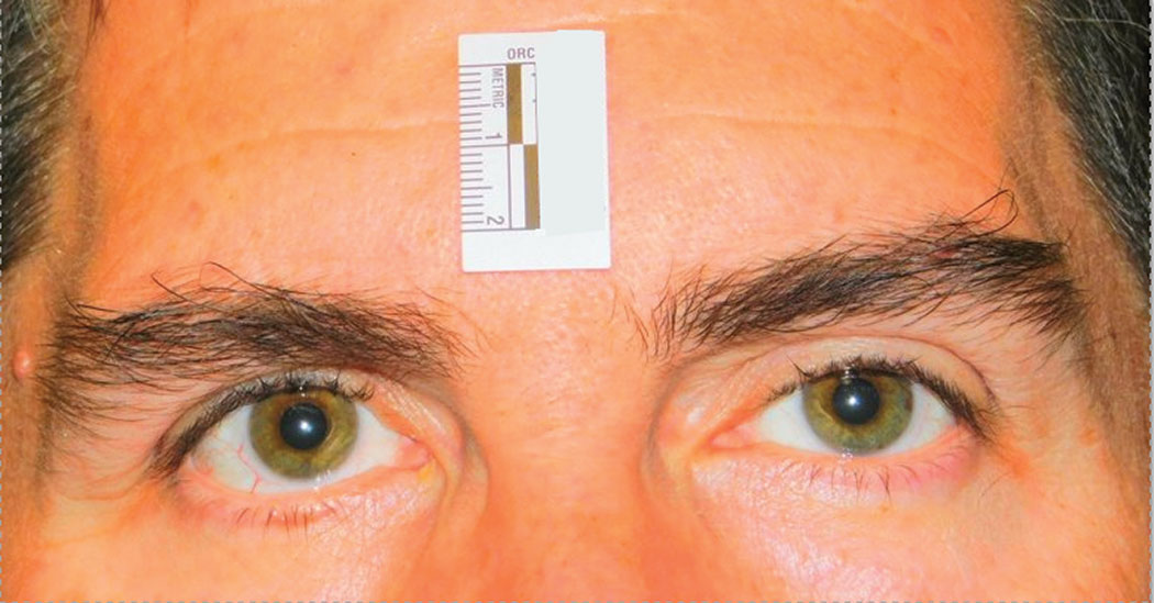 This clinical study subject is seen five minutes after instillation of RVL-1201 for the treatment of ptosis.
