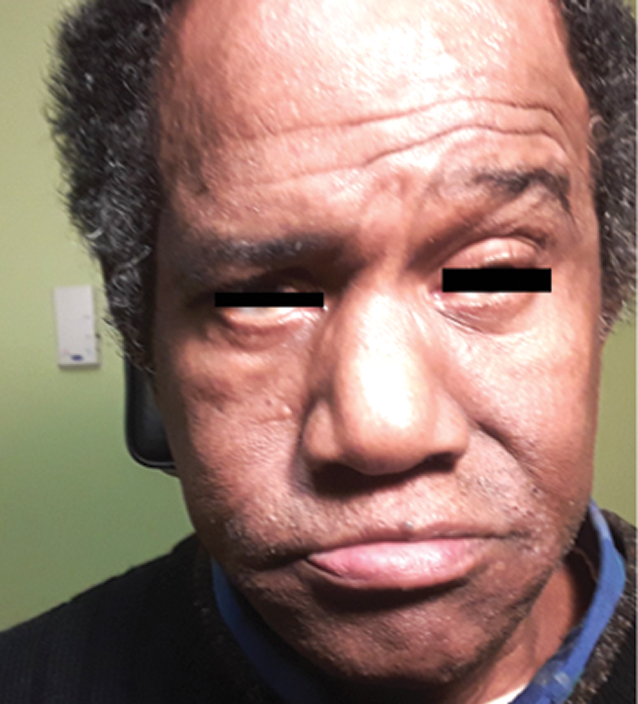 Fig. 1. The patient suffers from paralysis of the right side of the face in primary gaze.