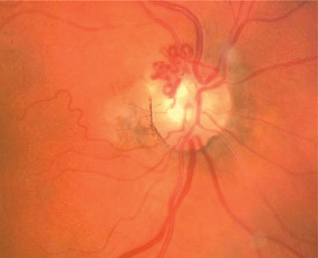 These collaterals formed over the optic disc in response to a CRVO.