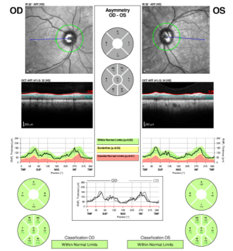 Fig.1. The patient's retinal nerve fiber layer analysis at presentation shows no glaucomatous thinning for both eyes.