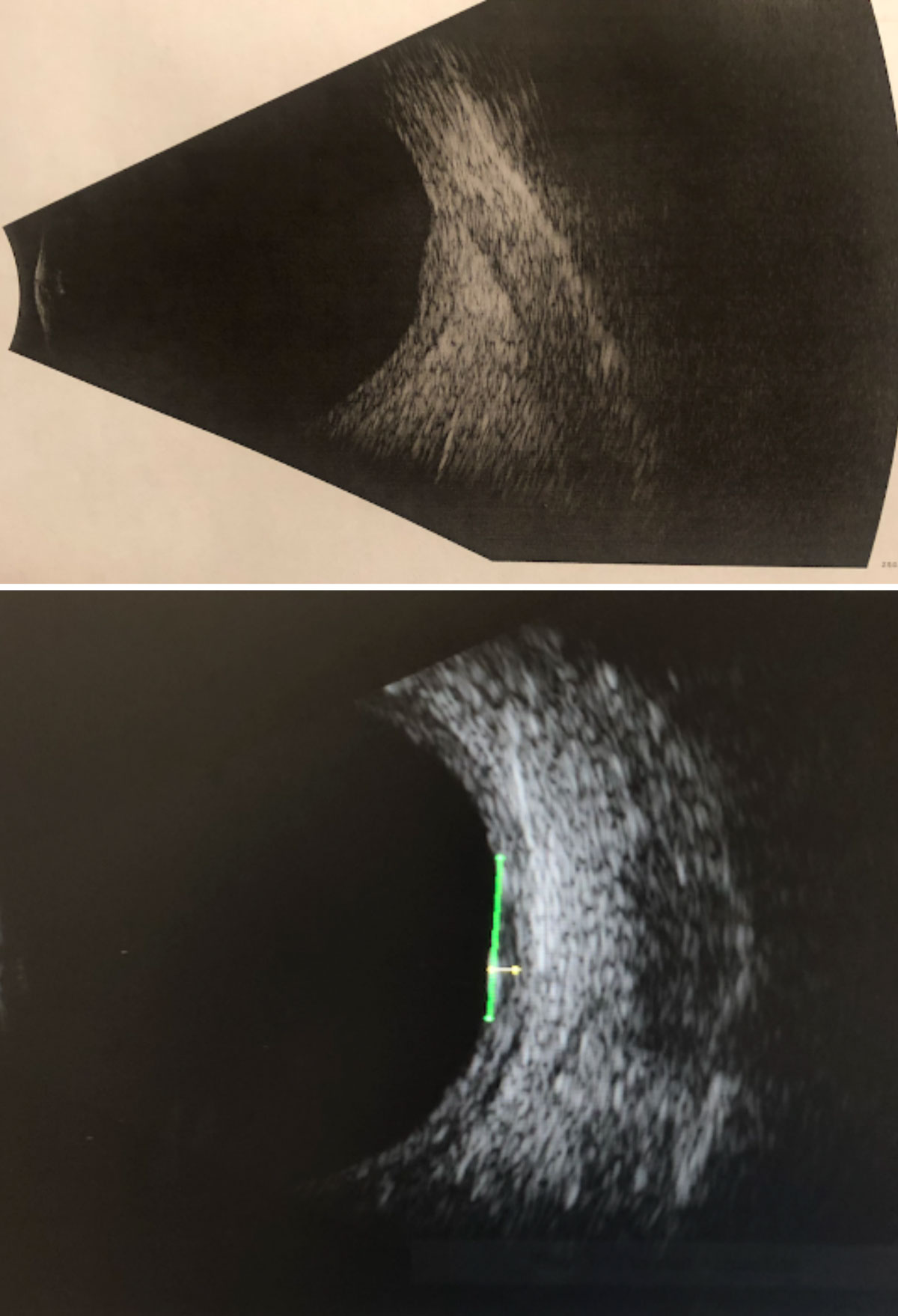 Fig. 11. B-scan ultrasonography through the suspicious lesion in the left eye without measurements (top) and with measurements (bottom): High internal reflectivity; transverse = 6.76mm; longitudinal = 5.92mm; horizontal (thickness) = 1.11mm.