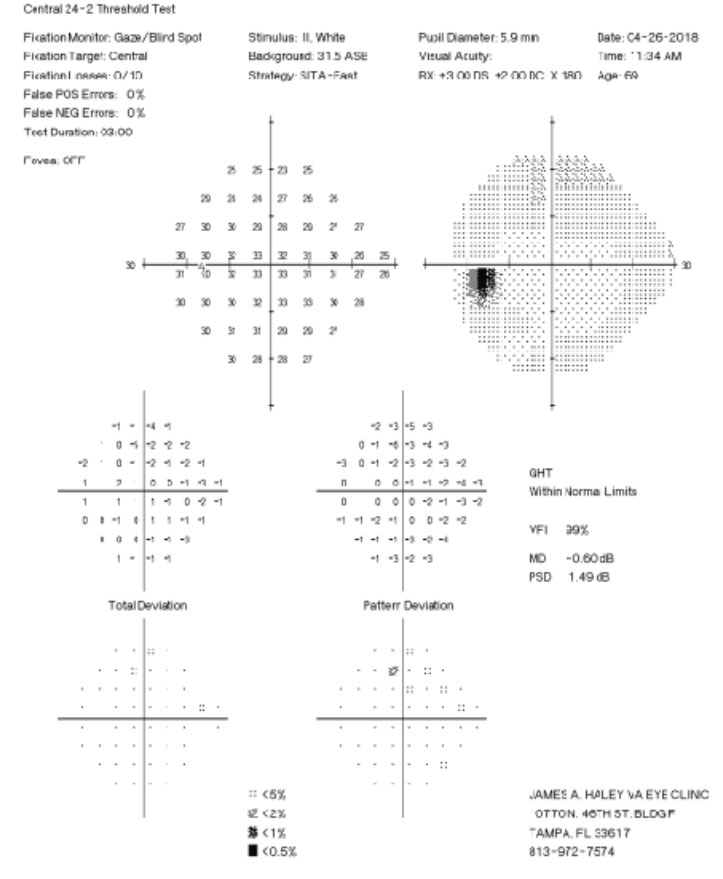 Fig. 2. His 24-2 visual fields the year prior show no glaucomatous visual field defects.