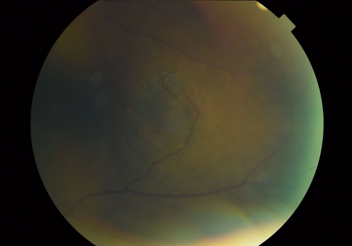 Fig. 7. A magnified fundus photo shows the dome-shaped lesion in the left eye temporal to the macula measuring 5- to 6-disc diameters. The presence of orange pigment spots, indistinct boarders, absence of drusen and halo can also be appreciated.